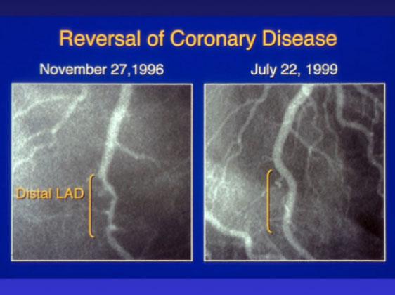 reversal of coronary disease angiogram