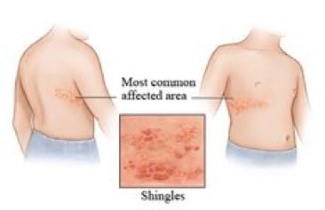 shingles shingrix injection site diagram