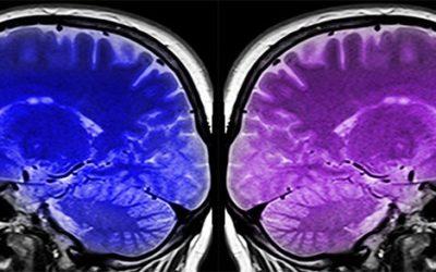 Biogen's Secret Sauce to Treat Alzheimer's